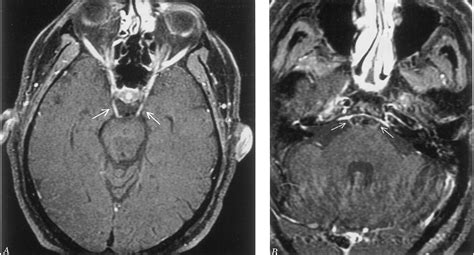 Miller Fisher syndrome: MRI findings | Neurology