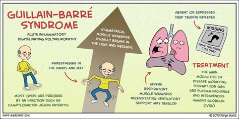 guillain-barré syndrome - Google Search | Guillain barre